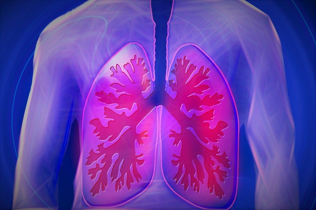 Sinais e sintomas da pneumonia